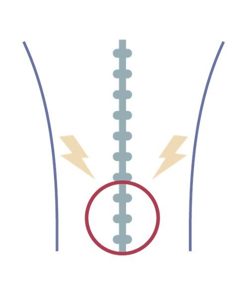 back pain illustration