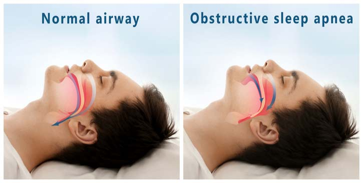 A diagram of how the throat operates during sleep apnea.