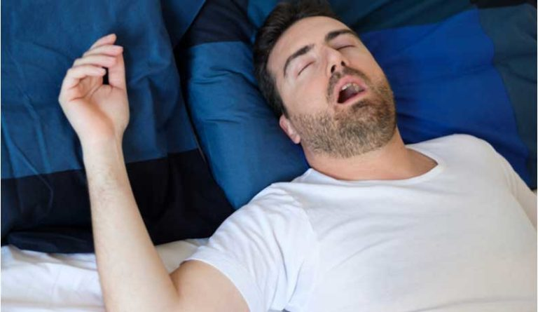 A man snores with his mouth open.