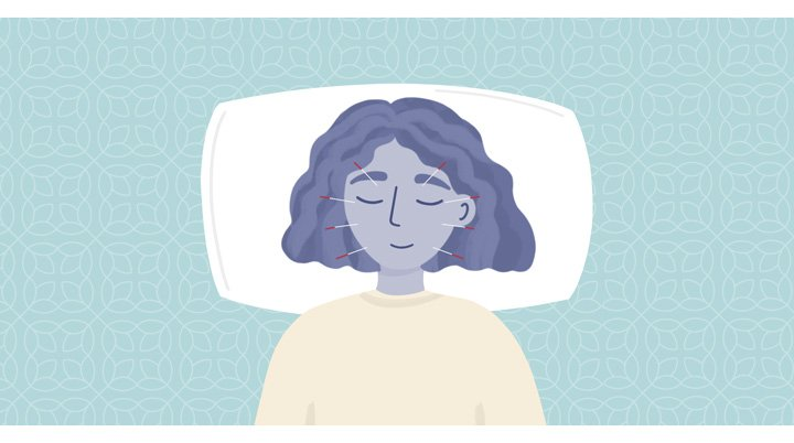 acupuncture to help sleep people with ASD